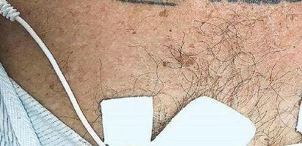 Nisu Znali šta će S Pacijentom Zbog Tetovaže Na Njegovim Grudima